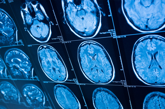 brain-scan-for-epilepsy